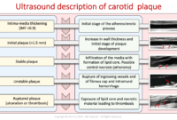 Carotid Course Info | Abc Vascular pertaining to Carotid Ultrasound Report Template