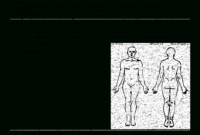 Death Clipart Autopsy, Death Autopsy Transparent Free For regarding Autopsy Report Template